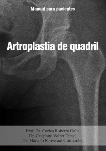 manual-paciente-artroplastia-de-quadril